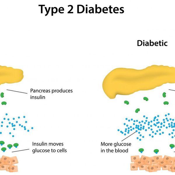 Diabetes Type 2 Essay Examples
