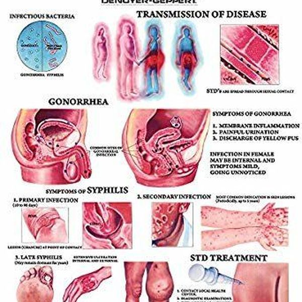 Sexually Transmitted Diseases Essay Examples
