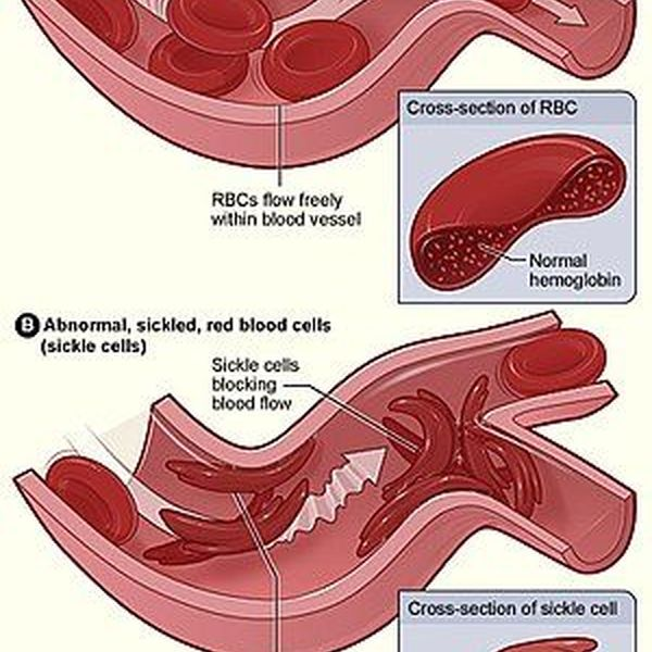 Sickle Cell Anemia Essay Examples